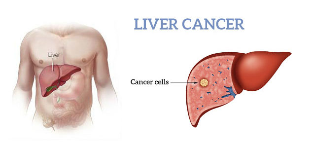 liver damage treatment in Delhi cusp surgeons 633x300 - Learn about the Symptoms of a Liver Cyst